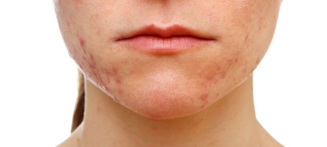 Interview - CBD oil cleared my skin of acne